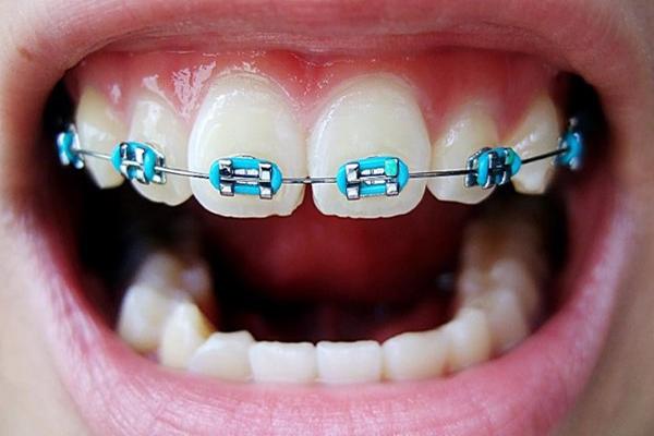 diş teli nedir, diş teli taktırma yaşı, diş teli hangi yaşlarda takılır