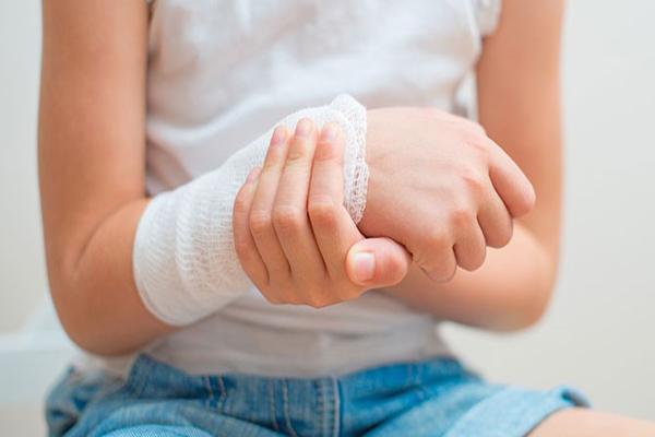 yanık tedavisi nasıl yapılır, hafif yanık tedavisi, hafif yanıkları tedavi etme