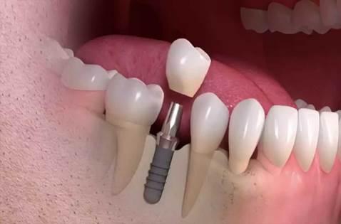 implant nasıl yapılır, implant kimlere yapılabilir, implant kimlere uygulanabilir