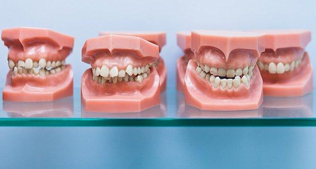 ortodonti fiyatları, ortodonti tedavi fiyatları, ortodonti tedavi ücreti