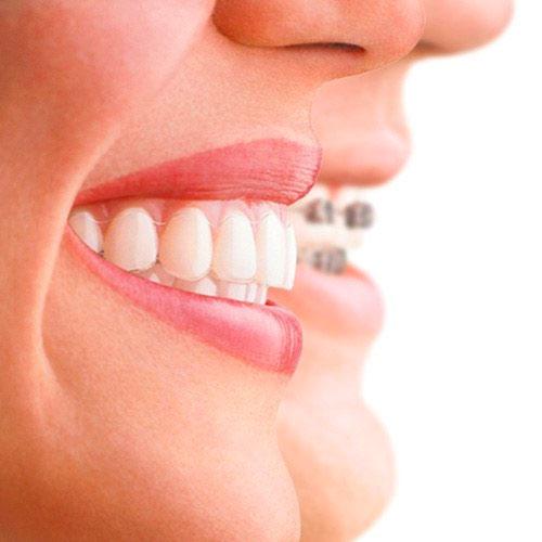 şeffaf diş teli fiyatları, diş teli fiyatları, diş teli fiyatları ne kadar