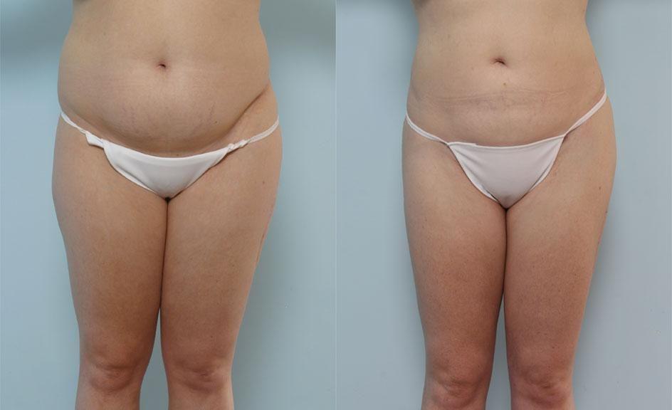 Liposuction yaptırmanın faydaları, Liposuction ile kilo verme, kilo vermede liposuctionın etkisi