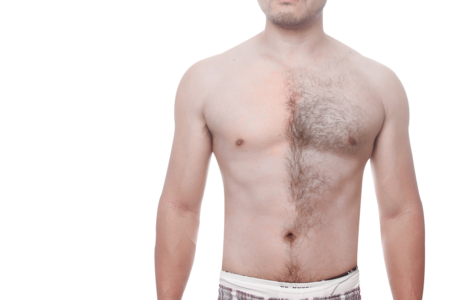 erkekler için lazer epilasyon, erkeklerde lazer epilasyon uygulaması, erkekler için epilasyon