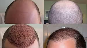 saç ekim doktorlarının önemi, en iyi saç ekim doktorları, saçları gürleştirme yolları