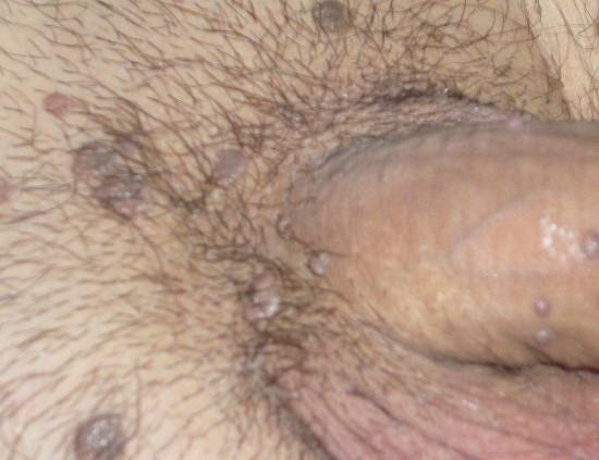 genital siğil tedavisi, genital siğil nedenleri, genital siğilin sebepleri neler