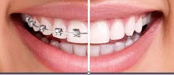 diş teli tedavisi, ortodonti tedavisi, çapraşık diş tedavisi