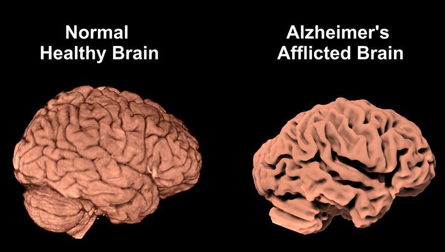 alzheimer hastalığı teşhisi, alzheimer hastalığı belirtileri, alzheimer hastalığı tedavisi